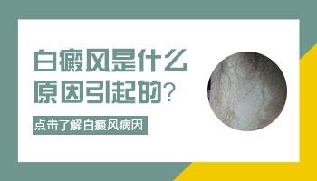 腰部长白斑是什么原因引起的 怎么预防白斑扩散