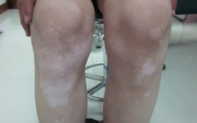 腿上有黄豆大的白是怎么回事