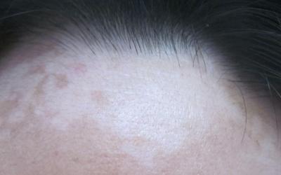 额头白色的斑块是不是白癜风