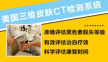 身上的白斑能用皮肤ct确诊吗