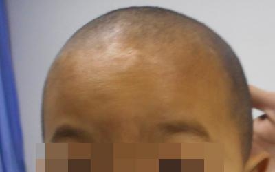头发边上的皮肤变白咋回事