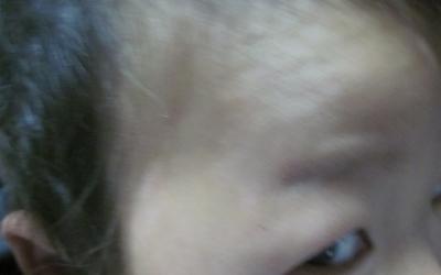 女孩发际线有一块白是不是白癜风
