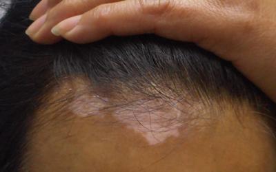 额头发际线处有一块白斑是白癜风吗