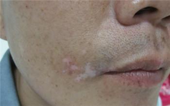 嘴角白癜风初期症状图片