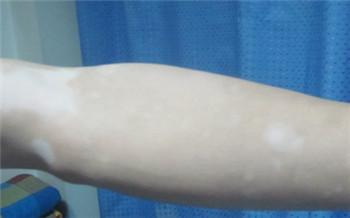 晒伤后手臂上长了很多小白点