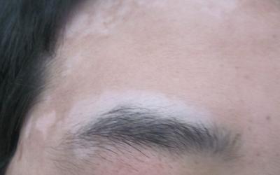 眉毛部位白癜风案例图片