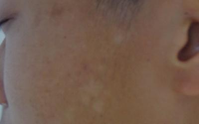 脸上有白色块状的斑点是什么