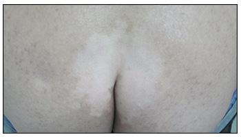屁股长了一块白色皮肤是什么