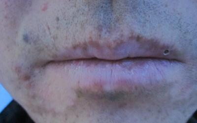 嘴唇周围白斑白点有点变大了