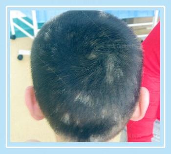 头上有一小块白斑 白斑周边有几根头发变白了