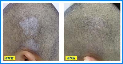 婴儿头皮上白斑早期图片大全