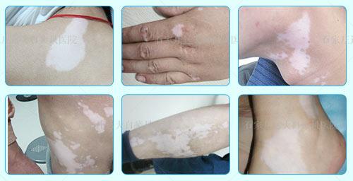 皮肤结痂之后掉落皮肤发白