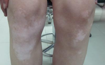腿和手臂上发现平滑小白点是怎么回事