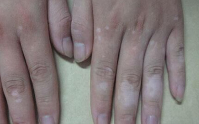 手指皮肤出现白斑的症状是什么