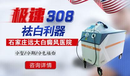 308nm准分子激光治疗白癜风一周照射几次效果比较好