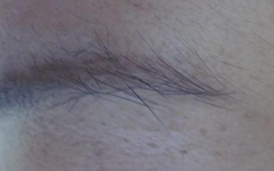 眉毛部位的皮肤发白适合激光治疗吗