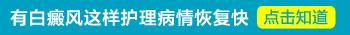 日本白癜风专用药膏 治疗白癜风特效药
