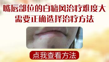 嘴唇黏膜部位白癜风佳治疗方法