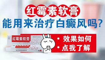 白癜风患者可以用红霉素软膏吗