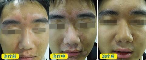 脸部白斑黑色素移植1周后图片