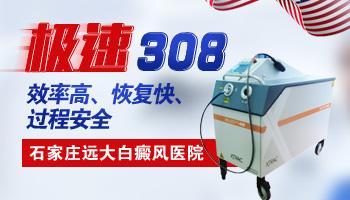 治白癜风的308激光仪器多少钱一台