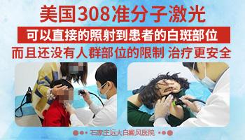 背部白斑发现一年多了怎么治疗 308治疗白斑效果怎么样
