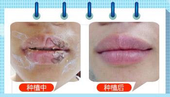 上嘴唇边上的白斑有半年了怎么治