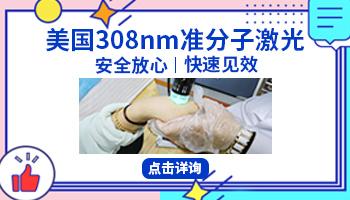 308激光对晕痣白癜风的治疗有效果吗