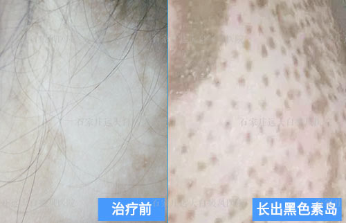 白癜风细胞移植两个多月没有黑色素