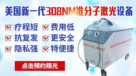308准分子激光治疗白斑一次费用是多少